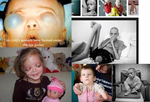 Look What Nuclear Industry Does to our Eyes& Bodies: Nuclear industry slowly murders us with everyday low level reactor emissions that add up and can be more deadly than high-level catastrophic disasters as seen in these pictures of child victims of Chernobyl.