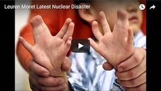 Mutated nuclear industry kids in Japan from Fukushima meltdowns suffer extra fingers, toes, arms & legs